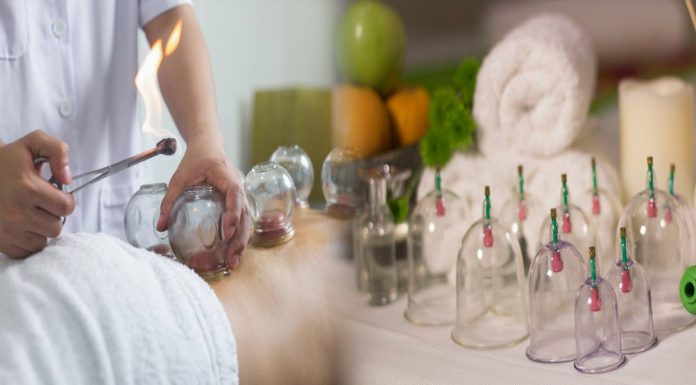 Cupping or Hajama, is an effective way to heal any pain or other issues.